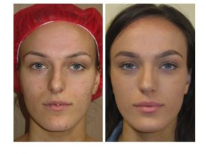 natural result, reduction tip bulbosity