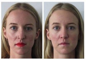 tip refinement, straighter nose