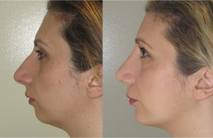 Chin implant and rhinoplasty