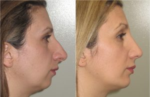 Melbourne chin implant