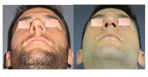 symmetrical nostrils
