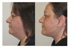 Deep plane neck/facelift