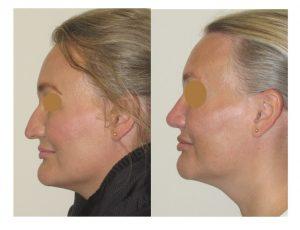 Chin reduction and reduction rhinoplasty