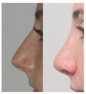 improved nasolabial angle