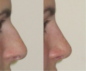 shorter nose